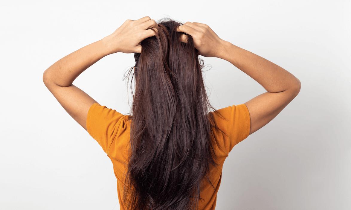 TIP 8 - Ako sa starať o vlasy s lupinami a svrbivú pokožku hlavy
